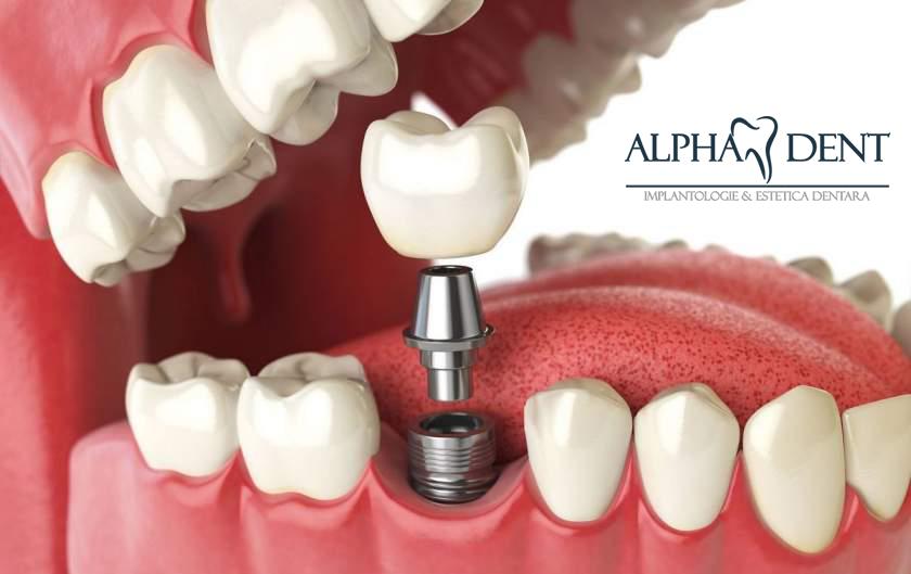 Tratarea Problemelor Dentare